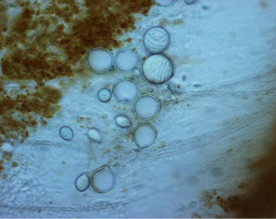 Células urticantes de las medusas